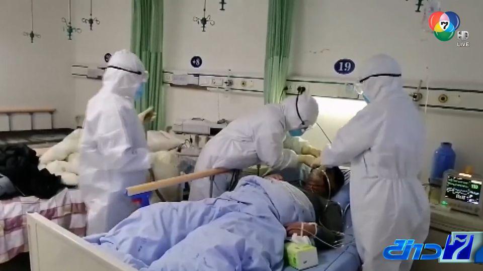แพทย์จีนพบงานวิจัย เชื้อไวรัสโคโรนาฝังอยู่ในตัวผู้ป่วยได้ 37 วัน