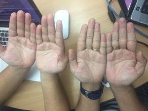 ทายใจทายนิสัย จากสีของมือ